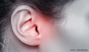 Single application cold-chain independent drug delivery system for outer ear infections