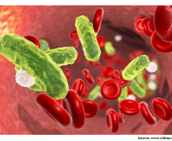 Community-acquired bacteraemia in COVID-19 in comparison to influenza A and influenza B: a retrospective cohort study